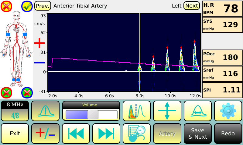 BASIC- measurement of ankle systolic pressure with Doppler