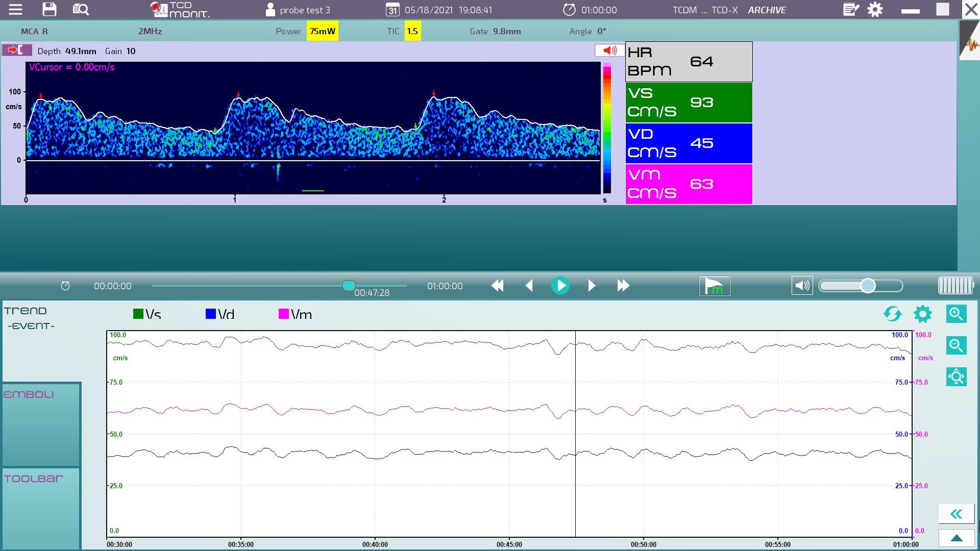 Atys medical transcranial Doppler monitoring