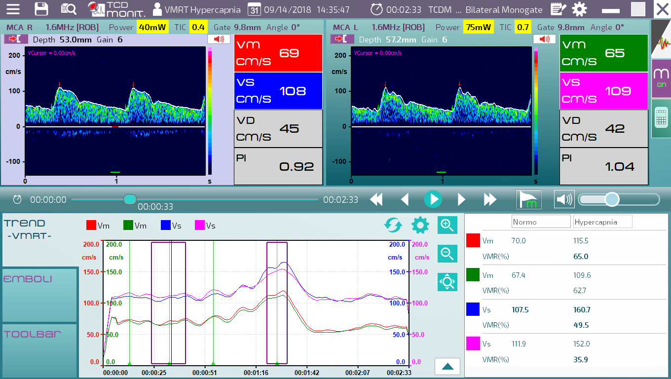 Simultaneous monitoring of blood velocity in MCA and cardiac output